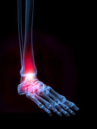 cartilage: painful foot