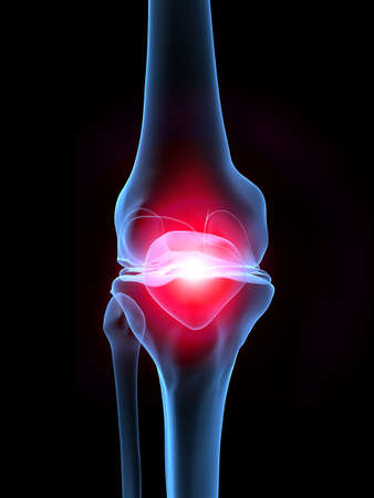 cartilage: skeletal knee with pain Stock Photo