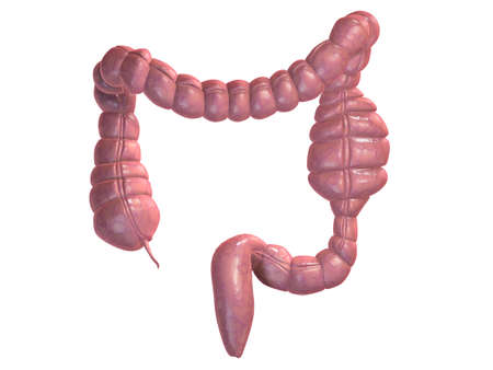 colon: blockage