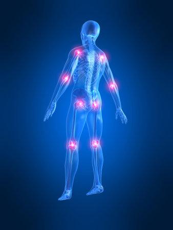 dolor de pecho: dolor en las articulaciones