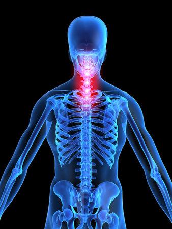 colonna vertebrale: dolore al collo  Archivio Fotografico