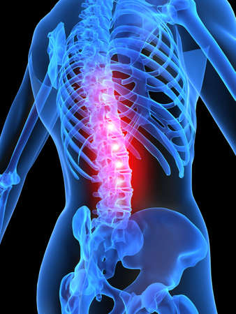 ilium: painful spine Stock Photo