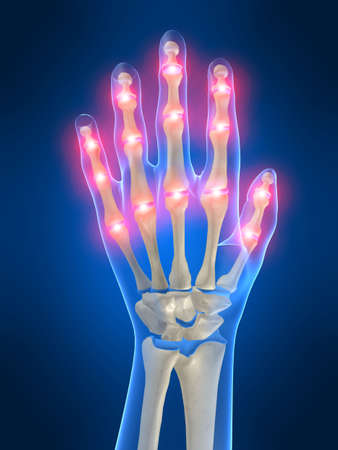 wrist joint: painful fingers Stock Photo