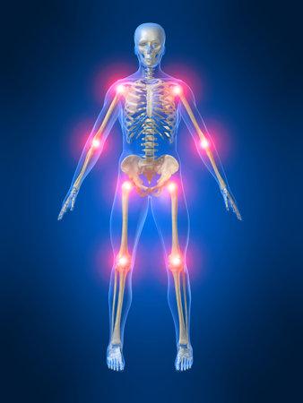 chest pain: painful joints