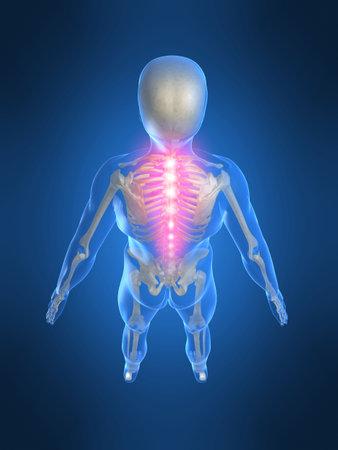 backache: backache Stock Photo