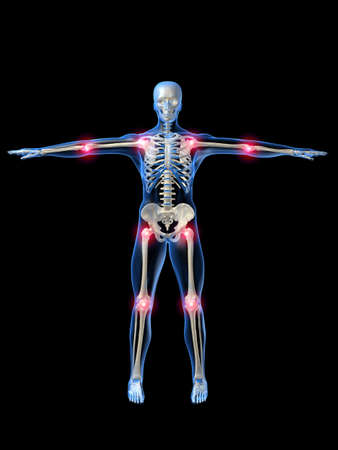 arthralgia: painful joints