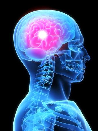brainy: headache
