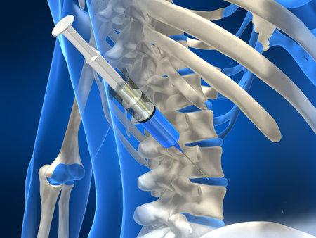 medula espinal: inyecci�n de discos