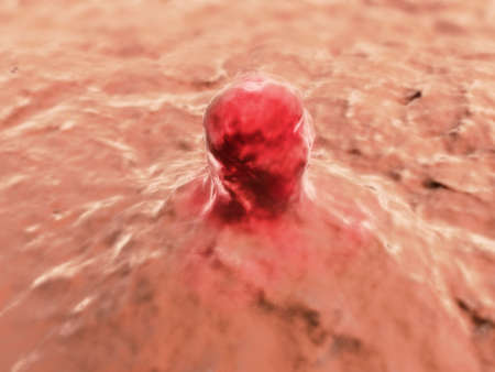 skin cancer: cancer cell