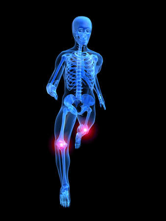 running man anatomy with painful knees Stock Photo - 1354193