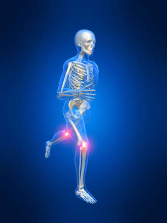radiation therapy: running man anatomy with painful knees