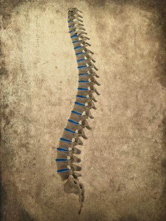 medula espinal: grunge columna vertebral