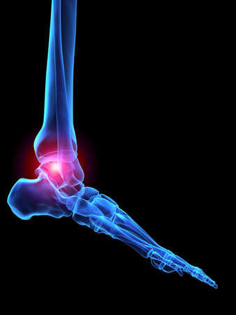 ankle: pain in ankle