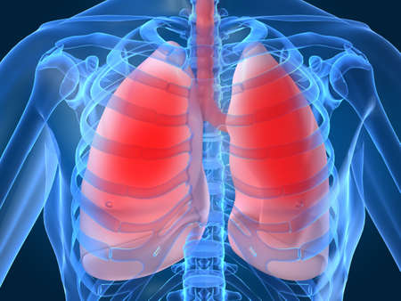 pneumonia: lung infection