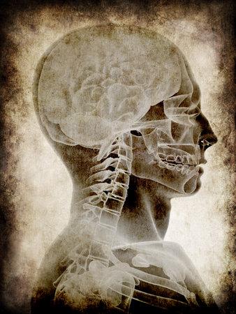 subconscious: grunge head