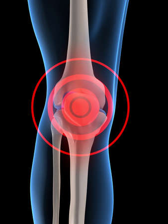 joint: pain in knee