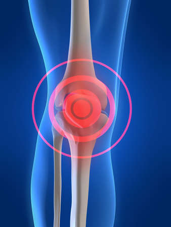 knee joint: pain in knee