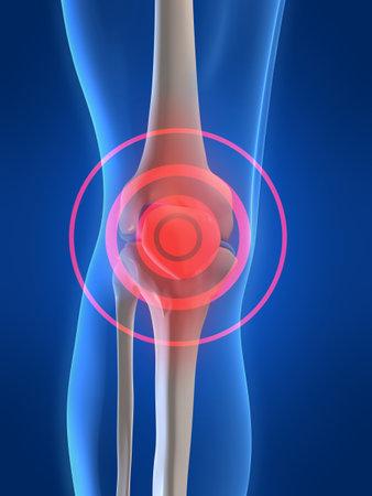 Schmerzen im Knie  Standard-Bild