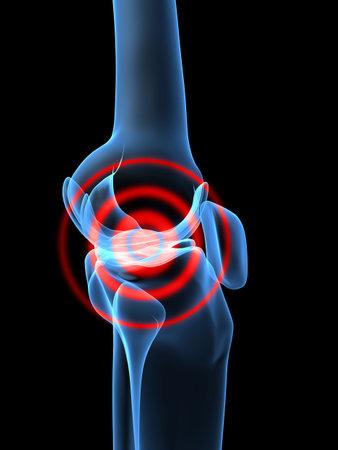 3d bone: pain in knee