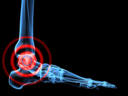 cartilage: pain in ankle