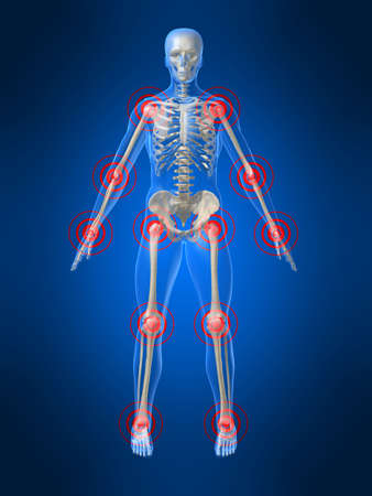 inflammation: joints inflammation Stock Photo