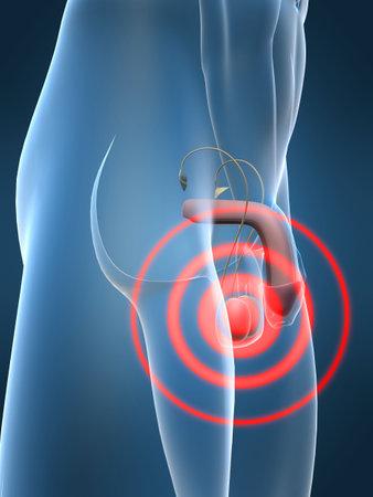 testis: penis inflammation