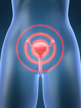 ovarios: inflamaci�n de �tero