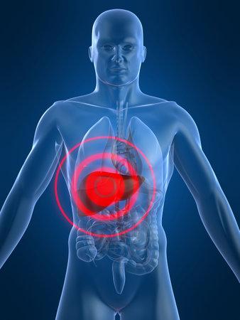 inflammation: liver inflammation