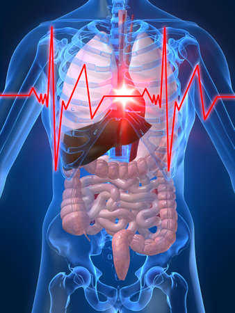 chest xray: heartbeatheartattack Stock Photo