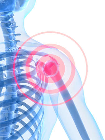 intestines: inflamaci�n del hombro