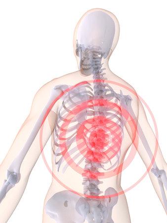 colonna vertebrale: mal di schiena