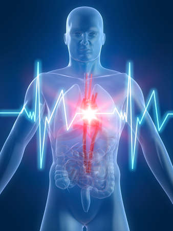 heartattack: heartbeatheartattack Stock Photo
