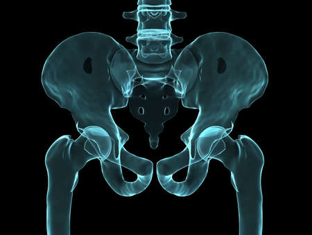 hip joint: x-ray human hip