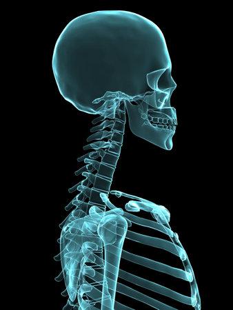 osteoporosis: radiograf�a del cr�neo humano y el pecho