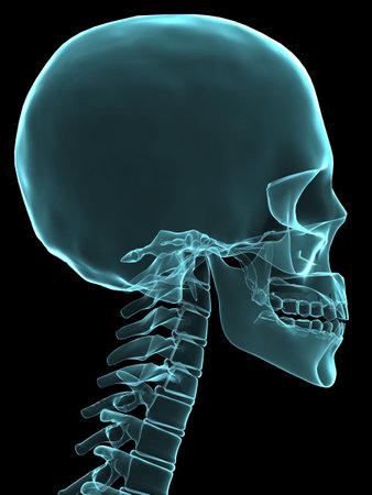 x-ray human skull Stock Photo