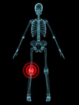 inflammation: x-ray - knee inflammation