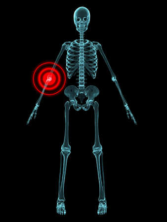 inflammation: x-ray - ellbow inflammation
