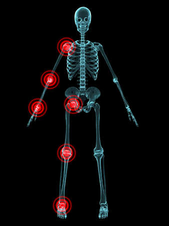 joint: x-ray - joint inflammation Stock Photo