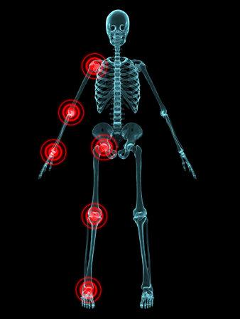 X-ray - gemeinsame Entzündung  Standard-Bild - 2846209