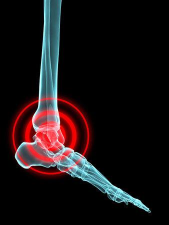huesos humanos: x-ray - inflamaci�n del tobillo