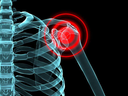 x-ray - shoulder inflammation Stock Photo - 2846243