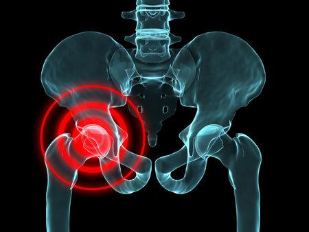 x-ray hip inflammation Stock Photo