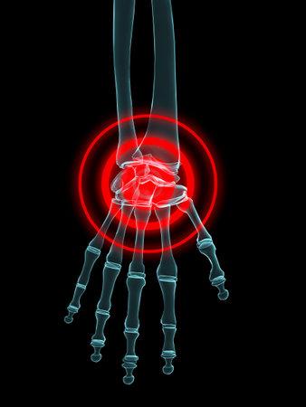 phalanx: x-ray - joint hand inflammation