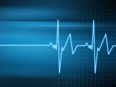 radiation therapy: heart beat