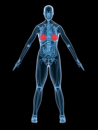 x-ray anatomy- highlighted mammary gland Stock Photo - 2846200