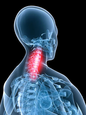 x-ray - painful neck photo