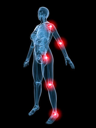painful: x-ray - painful joints