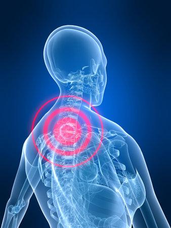 painful: painful neck