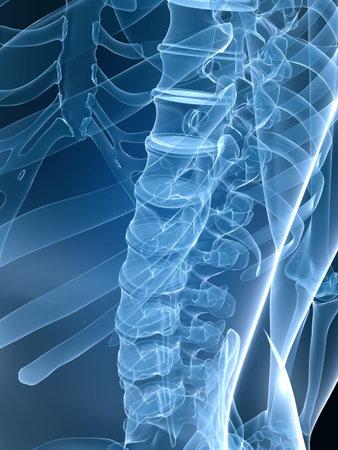 chest xray: x-ray back Stock Photo