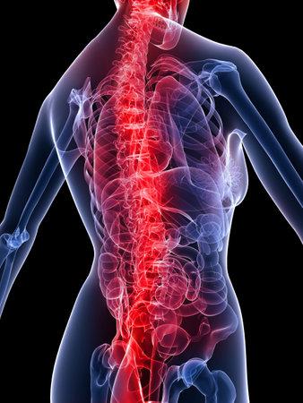 backache: female skeleton with backache